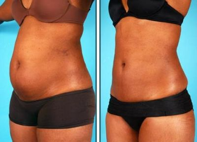 Abdominal Liposuction Cost Idea - Before and After Photos